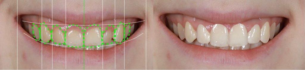 Crown lengthening procedure