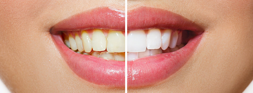 Teeth cleaning & prevention