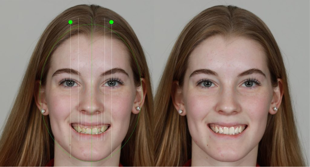 Digital Smile Design Before and After