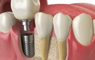 A diagram of a dental implant being installed into a jaw