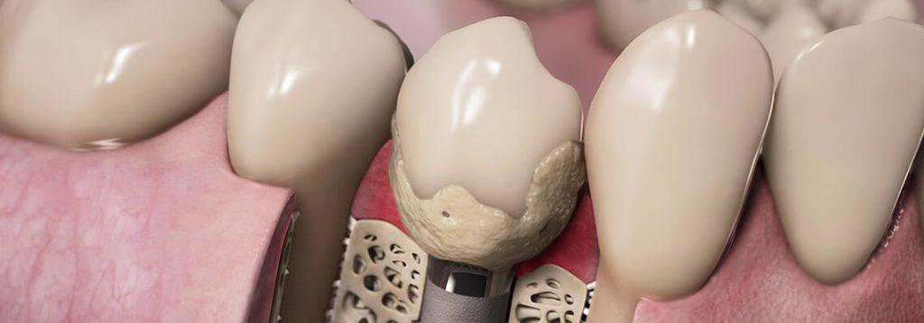 Peri-implantitis treatment